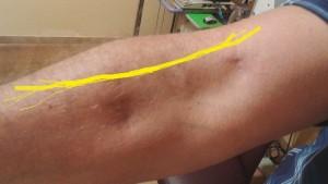 Cicatriz quirúrgica y trayecto del nervio en amarilo