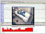 Vídeo- Polisomnograma